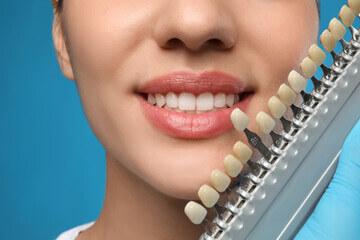 بهترین رنگ کامپوزیت دندان