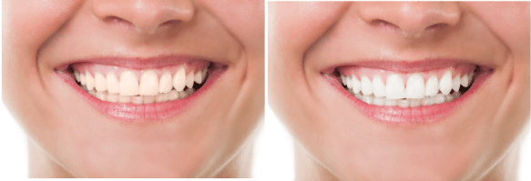 زرد شدن کامپوزیت دندان