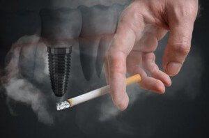 ایمپلنت و سیگار کشیدن