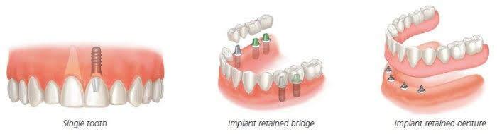 روش های جایگزینی دندان کشیده شده به کمک ایمپلنت