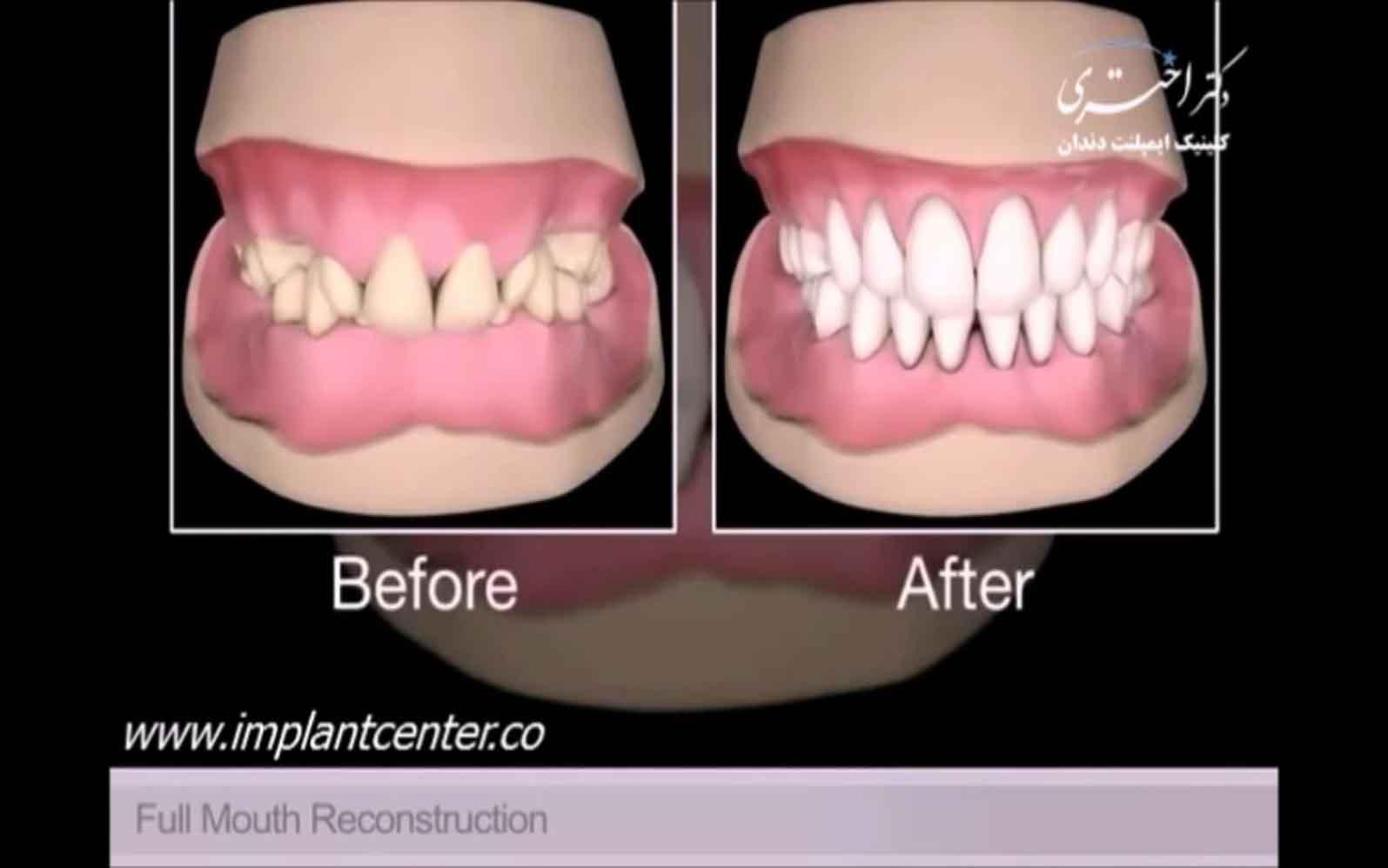 بازسازی کل دهان