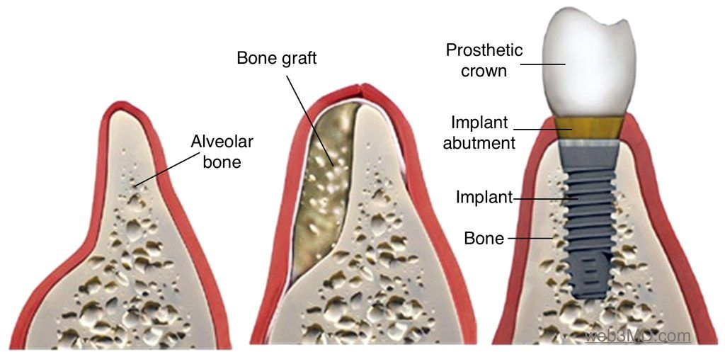 bone-grafting-dental-implants