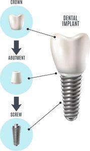 آناتومی ایمپلنت دندان