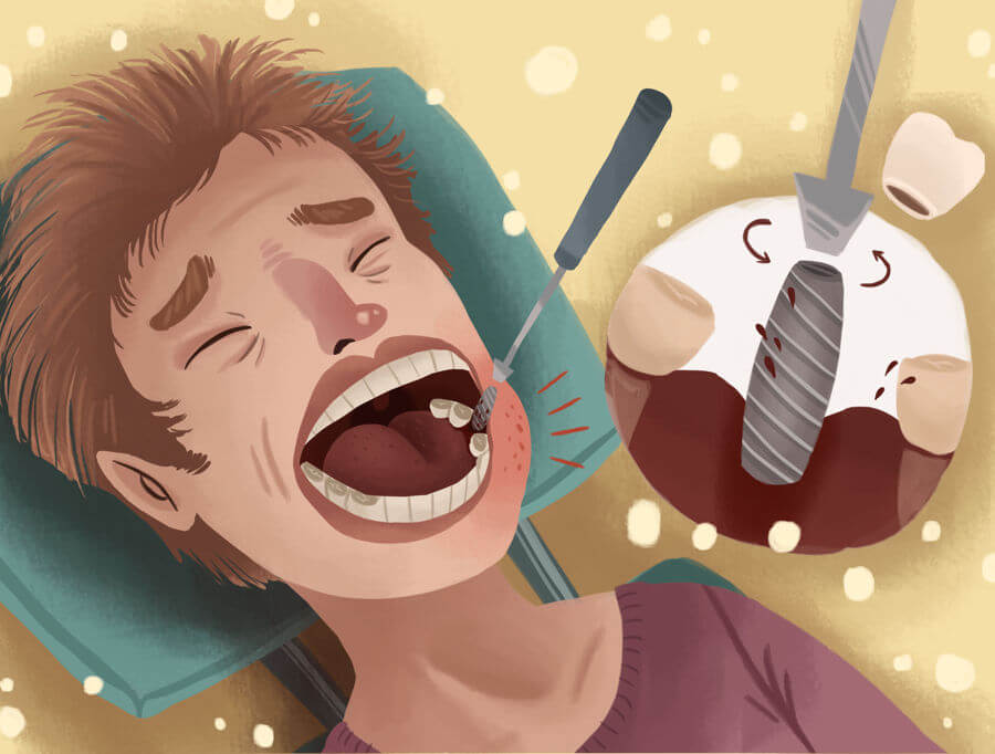 درد ایمپلنت بعد از جراحی کاشت دندان