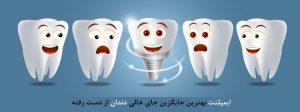ایمپلنت بهترین جایگزین جای خالی دندان