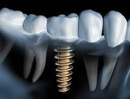آلرژی و حساسیت به ایمپلنت دندان