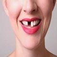 dental implants life time