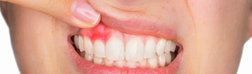 تورم ایمپلنت بعد از جراحی کاشت دندان