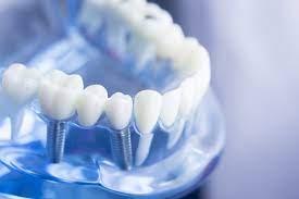bridge or dental implant