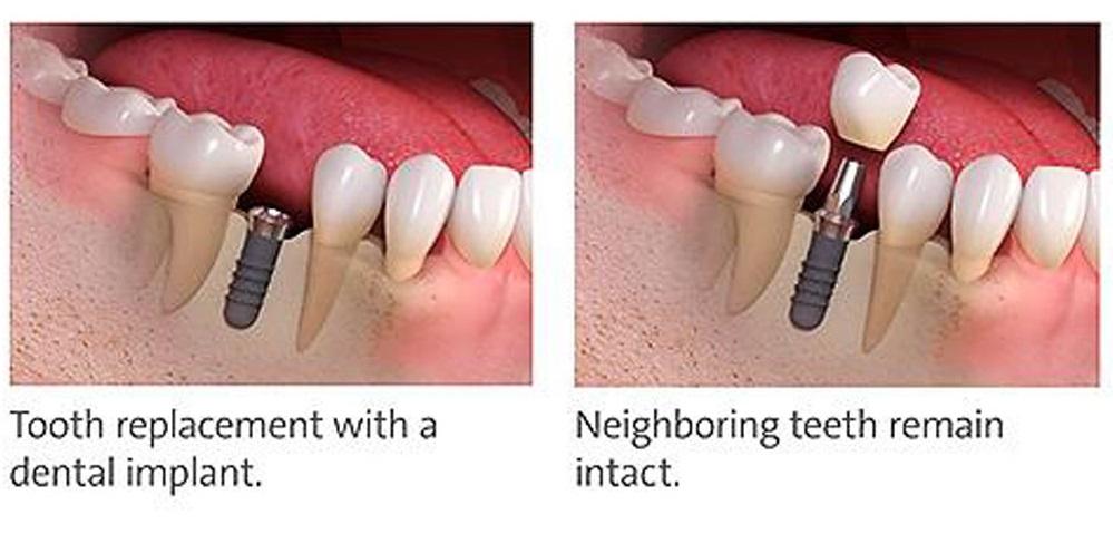 ایمپلنت بهترین جایگزین دندان کشیده شده
