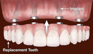 ایمپلنت جایگزین دندان کشیده شده