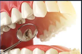 مهم ترین عوامل پوسیدگی دندان