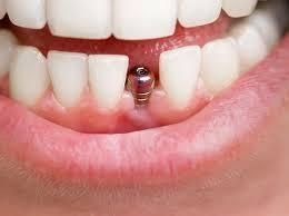 بعد از ایمپلنت دندان چه کار هایی باید انجام دهیم